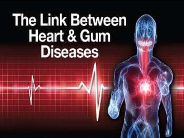 The Link between Gum & Heart Disease